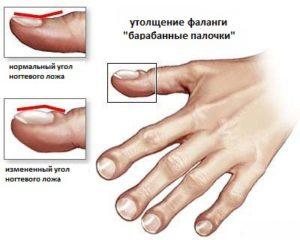 кистозный фиброз муковисцидоз