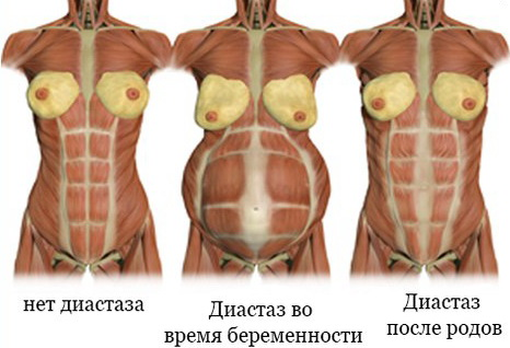 Как определить диастаз после родов фото