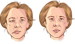 первые признаки инсульта у мужчин у женщин