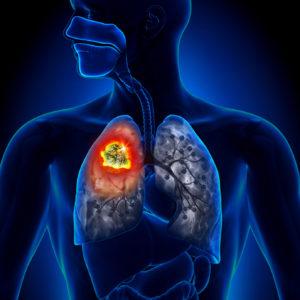 заболевания органов дыхания дыхательная система