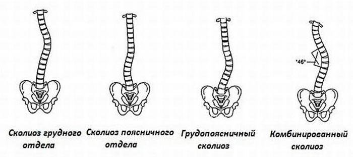 сколиоз позвоночника